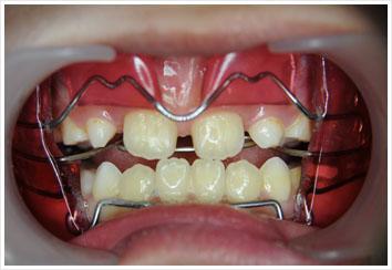 牙齿矫正器案例图片